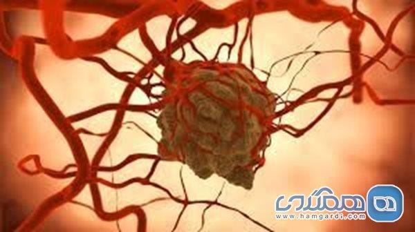 علائم سرطان غدد لنفاوی